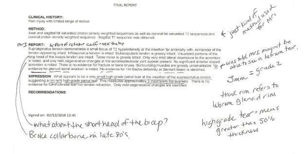 R shoulder MRI report