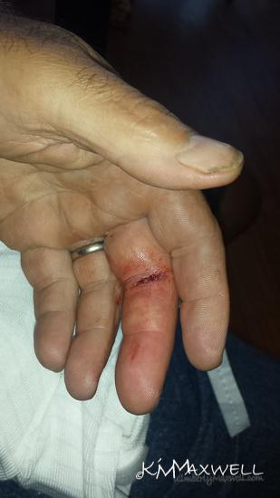 06-24-2019 11.56.12 Finger-sm