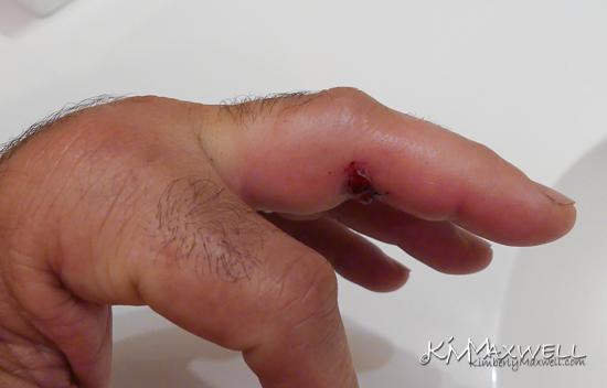 06-25-2019 07.13.10 Finger-sm